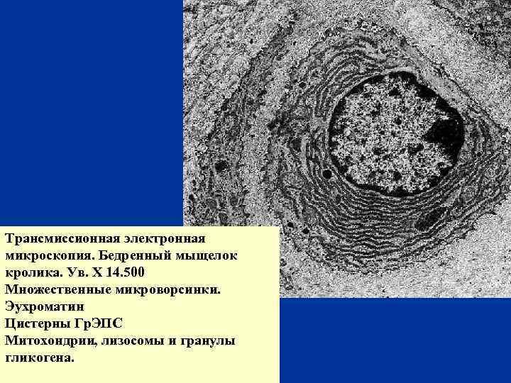 Трансмиссионная электронная микроскопия. Бедренный мыщелок кролика. Ув. Х 14. 500 Множественные микроворсинки. Эухроматин Цистерны