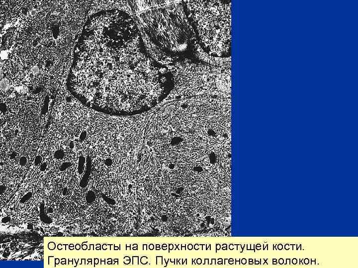 Остеобласты на поверхности растущей кости. Гранулярная ЭПС. Пучки коллагеновых волокон.