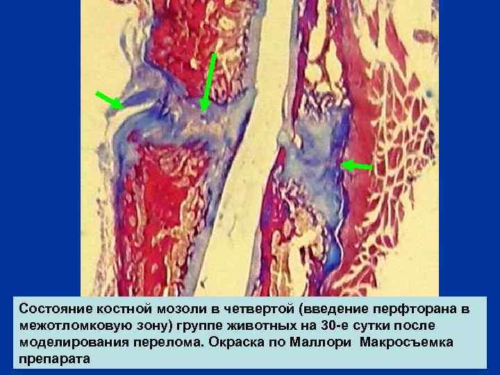 Состояние костной мозоли в четвертой (введение перфторана в межотломковую зону) группе животных на 30