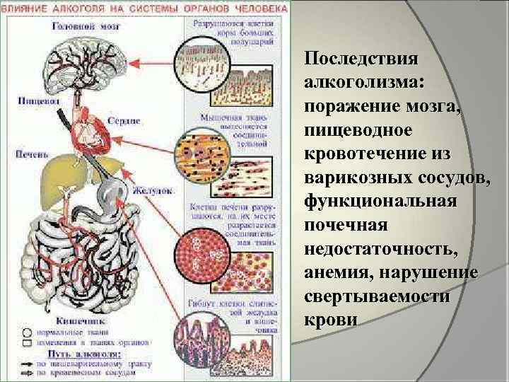 Последствия алкоголизма: поражение мозга, пищеводное кровотечение из варикозных сосудов, функциональная почечная недостаточность, анемия, нарушение