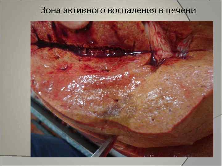 Зона активного воспаления в печени