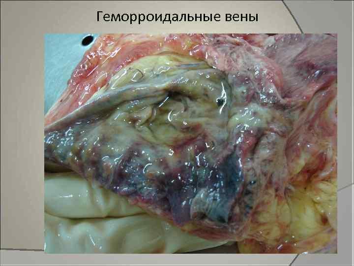 Геморроидальные вены