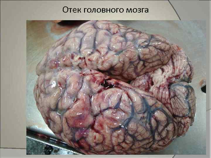 Отек головного мозга