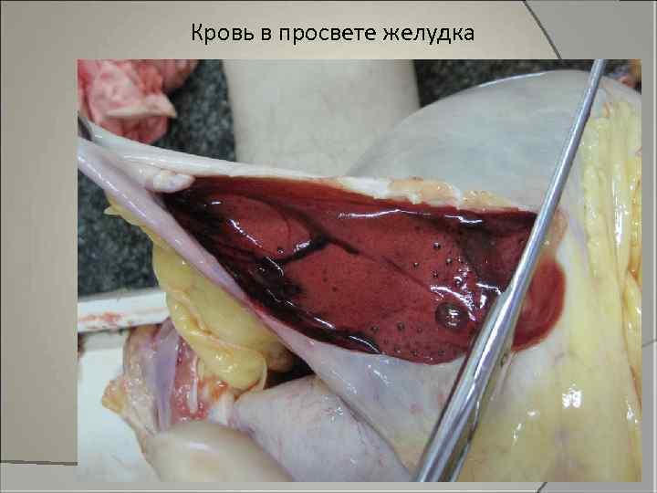 Кровь в просвете желудка