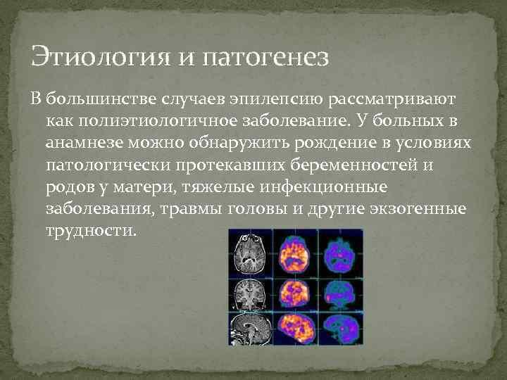 Этиология и патогенез В большинстве случаев эпилепсию рассматривают как полиэтиологичное заболевание. У больных в