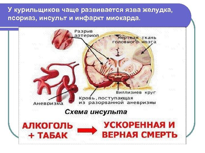 У курильщиков чаще развивается язва желудка, псориаз, инсульт и инфаркт миокарда.