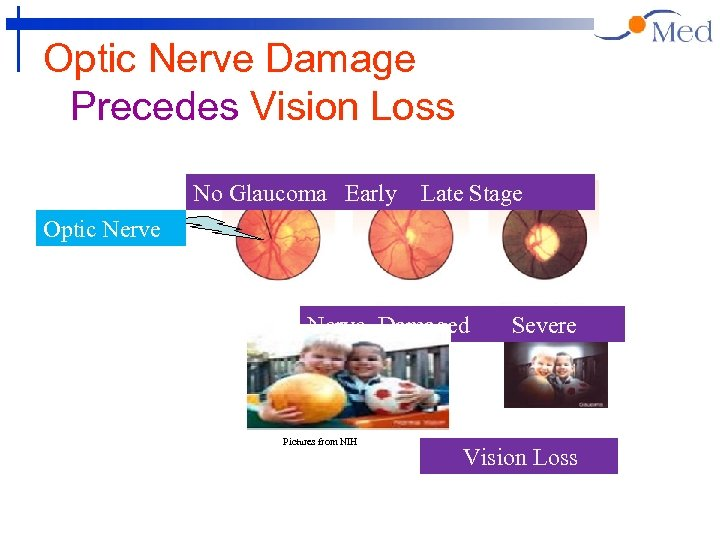 Optic Nerve Damage Precedes Vision Loss No Glaucoma Early Late Stage Optic Nerve Damaged