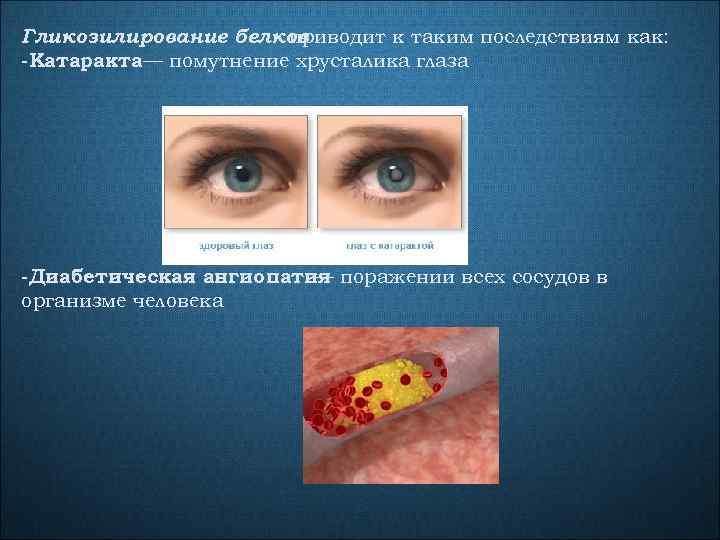Гликозилирование белков приводит к таким последствиям как: -Катаракта— помутнение хрусталика глаза -Диабетическая ангиопатия поражении