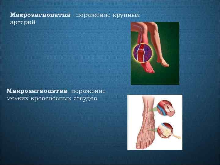 Макроангиопатия поражение крупных — артерий Микроангиопатия —поражение мелких кровеносных сосудов