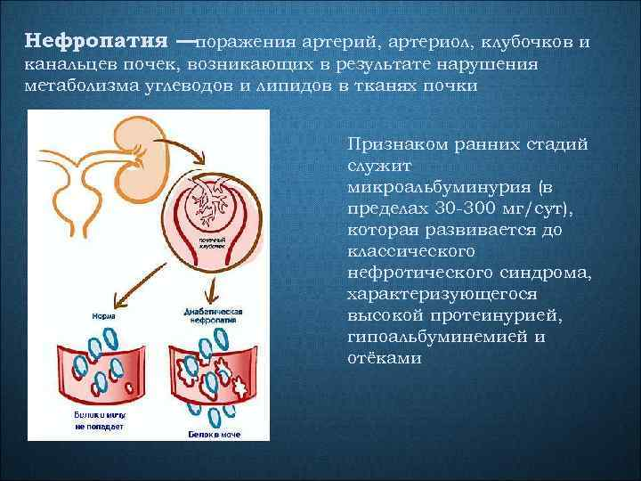 Нефропатия —поражения артерий, артериол, клубочков и канальцев почек, возникающих в результате нарушения метаболизма углеводов