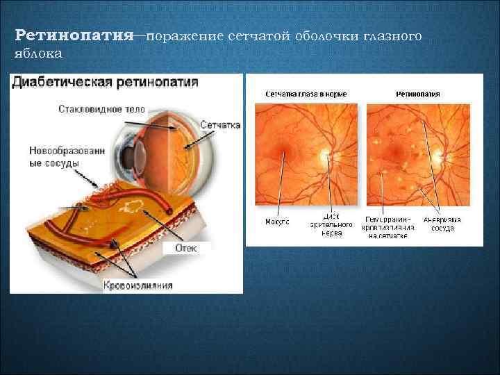 Ретинопатия поражение сетчатой оболочки глазного — яблока