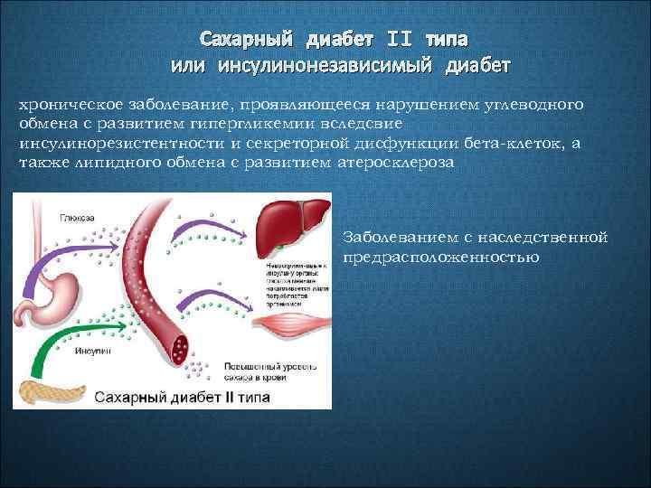 Сахарный диабет II типа или инсулинонезависимый диабет хроническое заболевание, проявляющееся нарушением углеводного обмена с