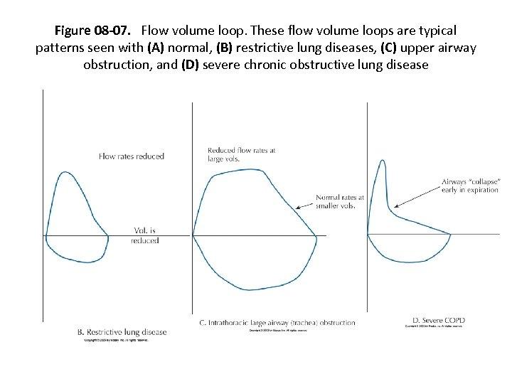 Figure 08 -07. Flow volume loop. These flow volume loops are typical patterns seen