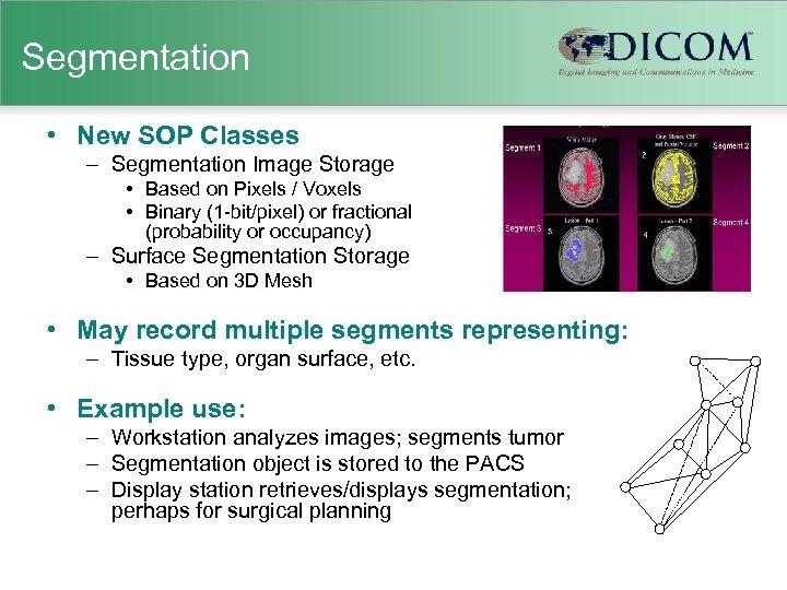 Segmentation • New SOP Classes – Segmentation Image Storage • Based on Pixels /