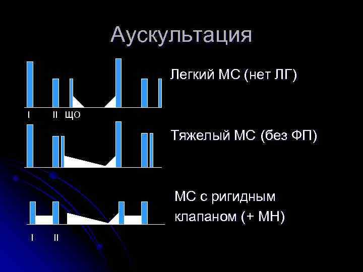 Аускультация Легкий МС (нет ЛГ) I II ЩО Тяжелый МС (без ФП) МС с