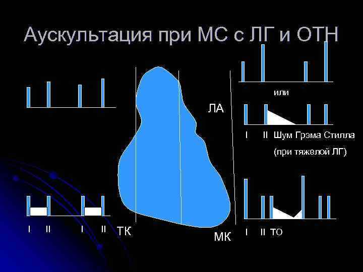 Аускультация при МС с ЛГ и ОТН или ЛА I II Шум Грэма Стилла
