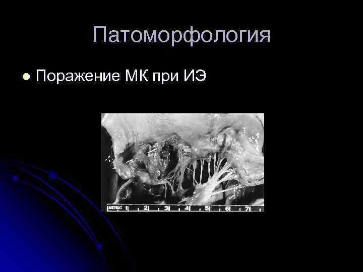 Патоморфология l Поражение МК при ИЭ