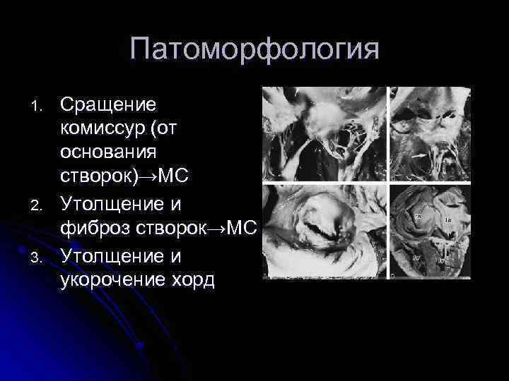 Патоморфология 1. 2. 3. Сращение комиссур (от основания створок)→МС Утолщение и фиброз створок→МС Утолщение