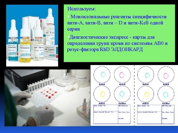 Используем: Моноклональные реагенты специфичности анти-А, анти-В, анти – D и анти-Kell одной серии Диагностические