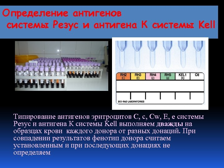 Определение антигенов системы Резус и антигена К системы Kell Типирование антигенов эритроцитов С, с,