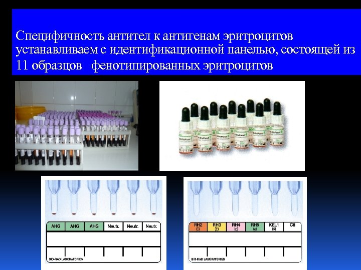 Специфичность антител к антигенам эритроцитов устанавливаем с идентификационной панелью, состоящей из 11 образцов фенотипированных