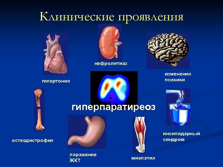 Клинические проявления нефролитиаз изменения психики гипертония гиперпаратиреоз инсипидарный синдром остеодистрофия поражение ЖКТ миопатия