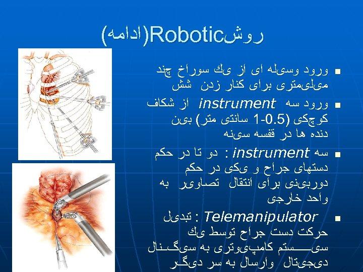 ﺭﻭﺵ )Robotic ﺍﺩﺍﻣﻪ( n n ﻭﺭﻭﺩ ﻭﺳیﻠﻪ ﺍی ﺍﺯ یﻚ ﺳﻮﺭﺍﺥ چﻨﺪ ﻣیﻠیﻤﺘﺮی