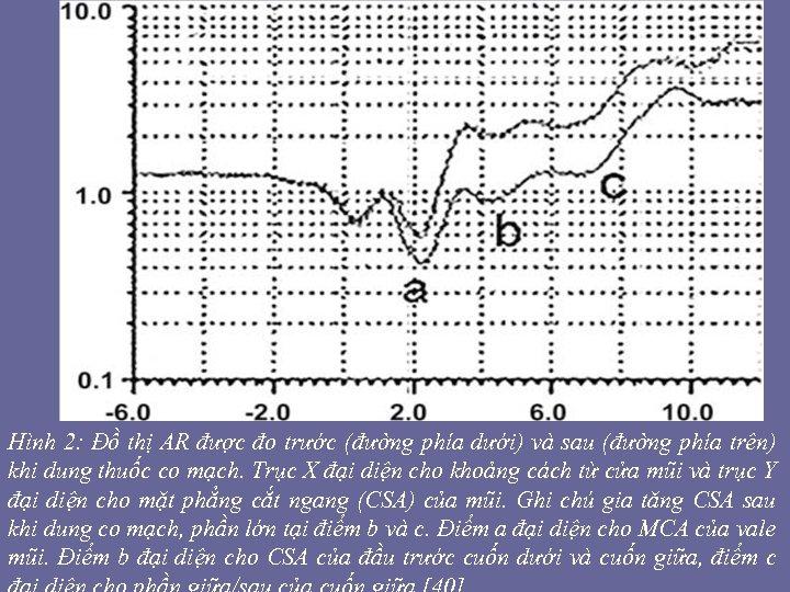 Hình 2: Đồ thị AR được đo trước (đường phía dưới) và sau (đường