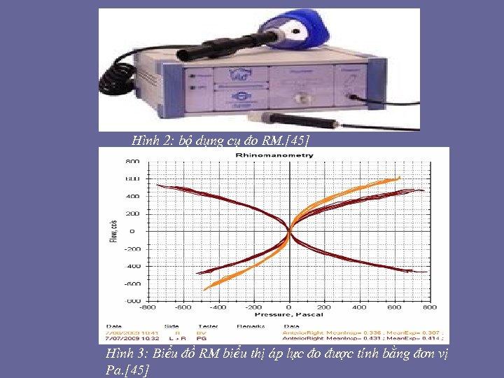 Hình 2: bộ dụng cụ đo RM. [45] Hình 3: Biểu đồ RM biểu
