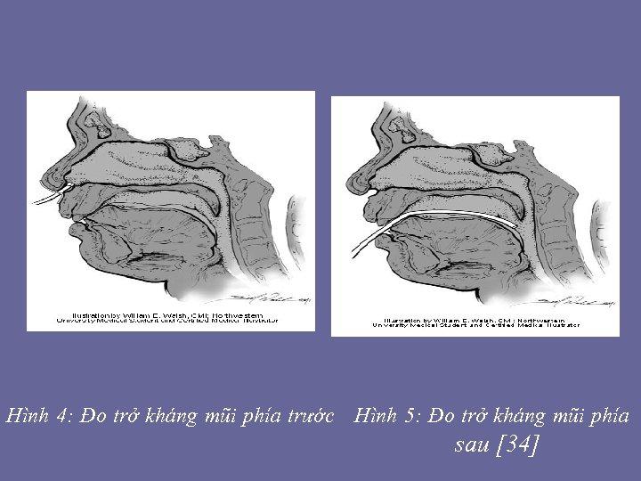 Hình 4: Đo trở kháng mũi phía trước Hình 5: Đo trở kháng mũi