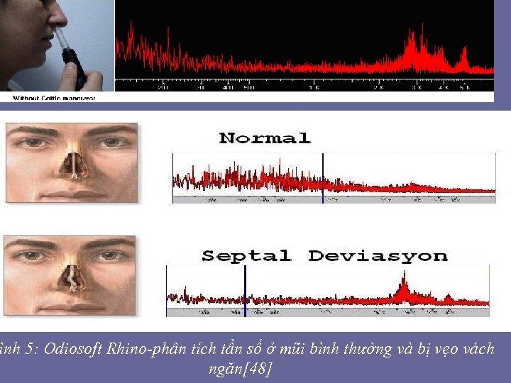 ình 5: Odiosoft Rhino-phân tích tần số ở mũi bình thường và bị vẹo