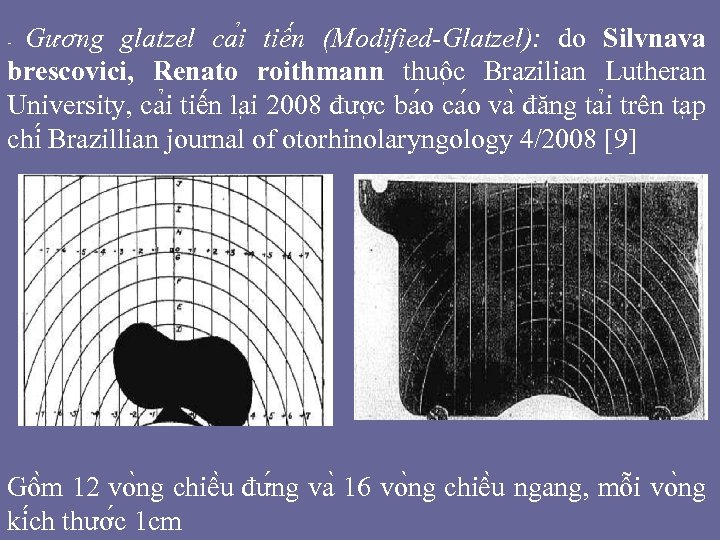 Gương glatzel ca i tiê n (Modified-Glatzel): do Silvnava brescovici, Renato roithmann thuô c