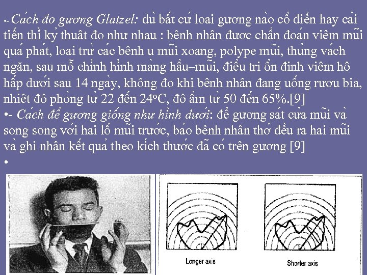 Ca ch đo gương Glatzel: du bâ t cư loa i gương na o