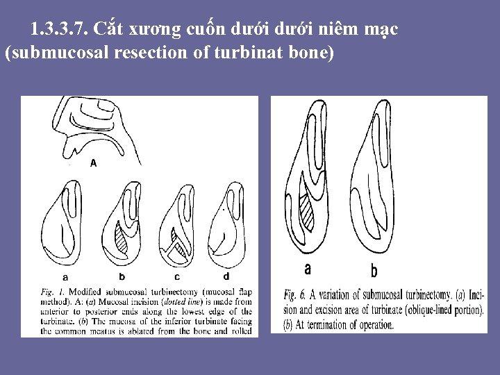 1. 3. 3. 7. Cắt xương cuốn dưới niêm mạc (submucosal resection of turbinat