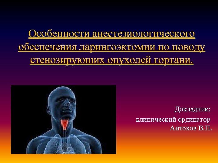 Особенности анестезиологического обеспечения ларингоэктомии по поводу стенозирующих опухолей гортани. Докладчик: клинический ординатор Антохов В.