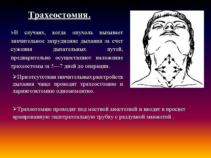 Трахеостомия. ØВ случаях, когда опухоль вызывает значительное затруднение дыхания за счет сужения дыхательных путей,