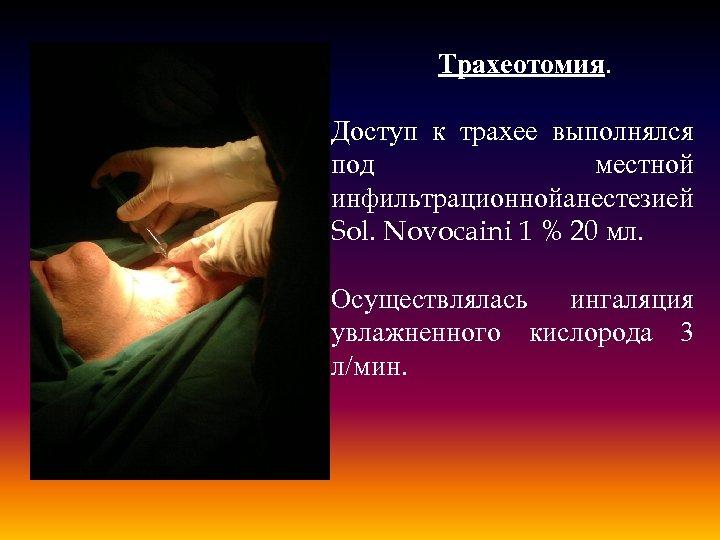 Трахеотомия. Доступ к трахее выполнялся под местной инфильтрационной анестезией Sol. Novocaini 1 % 20
