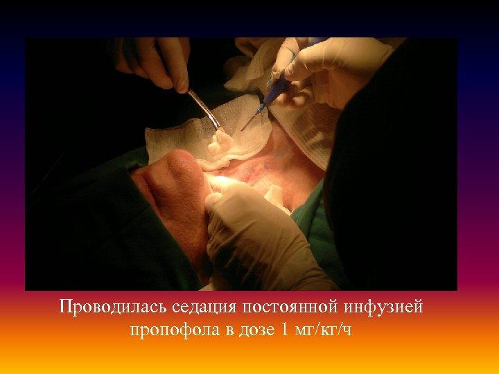 Проводилась седация постоянной инфузией пропофола в дозе 1 мг/кг/ч