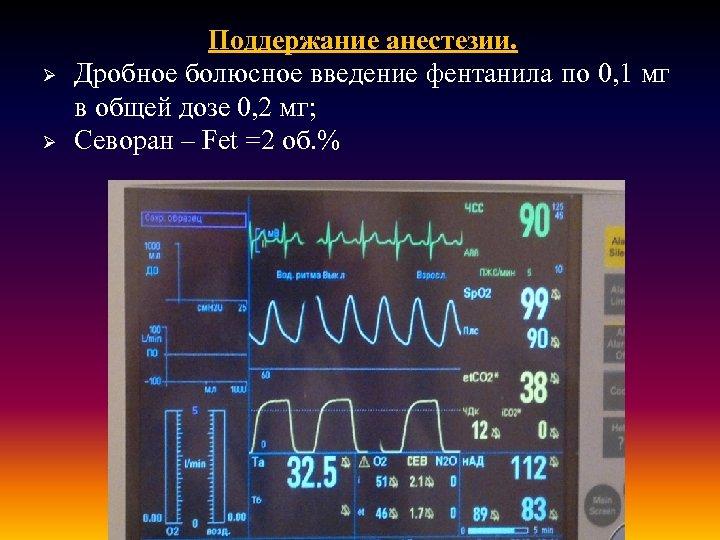 Ø Ø Поддержание анестезии. Дробное болюсное введение фентанила по 0, 1 мг в общей
