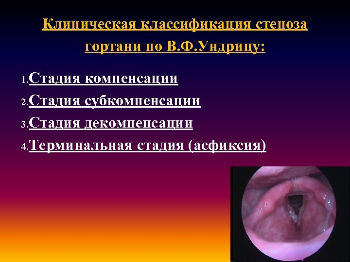 Клиническая классификация стеноза гортани по В. Ф. Ундрицу: 1. Стадия компенсации 2. Стадия субкомпенсации