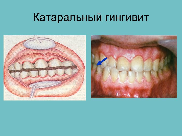 Хронический катаральный гингивит картинки