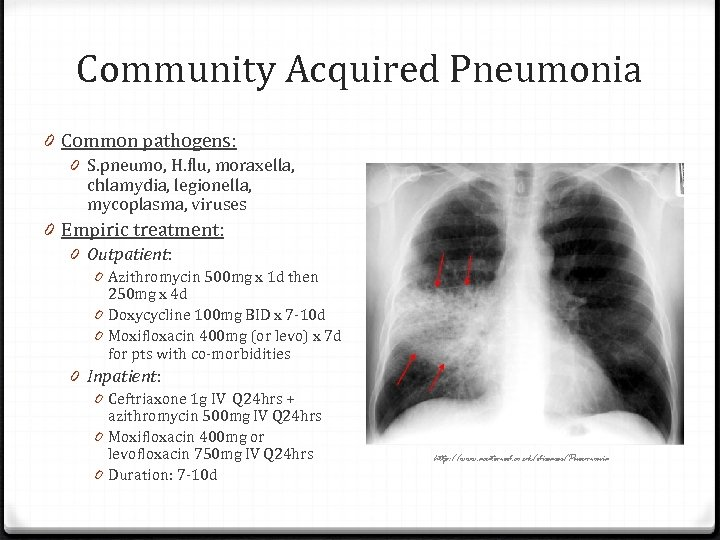 Community Acquired Pneumonia 0 Common pathogens: 0 S. pneumo, H. flu, moraxella, chlamydia, legionella,