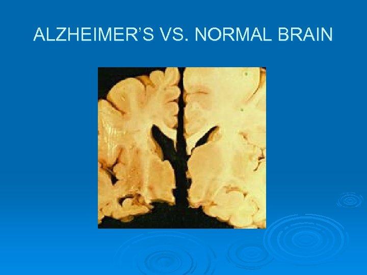 ALZHEIMER'S VS. NORMAL BRAIN