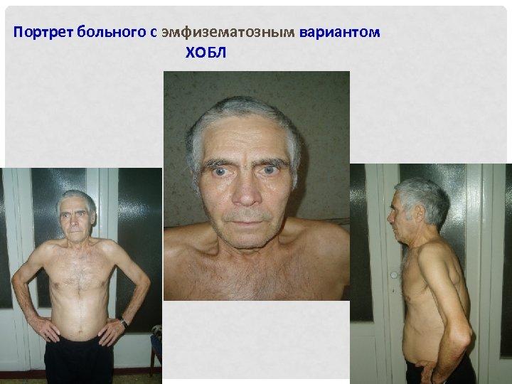 Портрет больного с эмфизематозным вариантом ХОБЛ