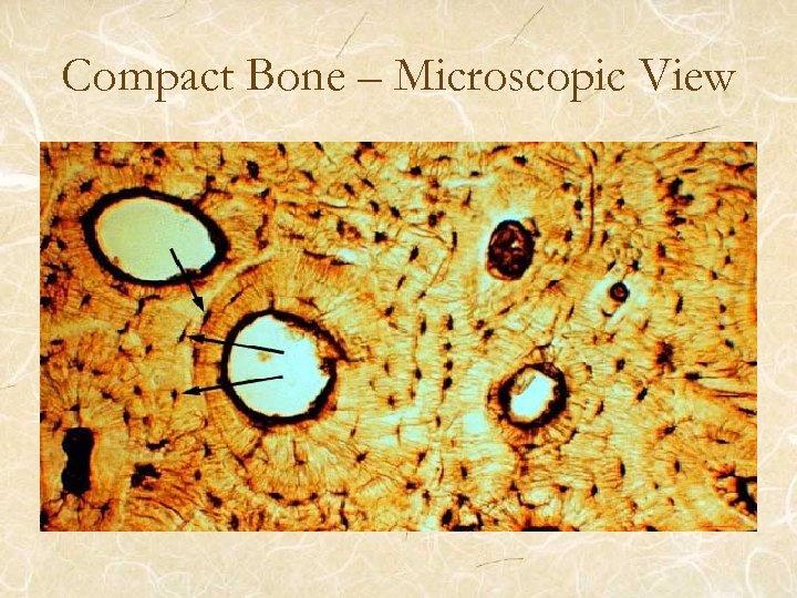 Compact Bone – Microscopic View