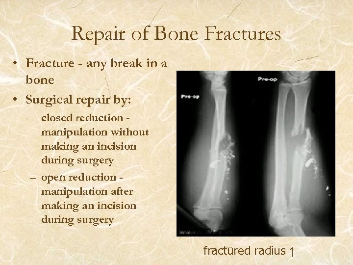 Repair of Bone Fractures • Fracture - any break in a bone • Surgical