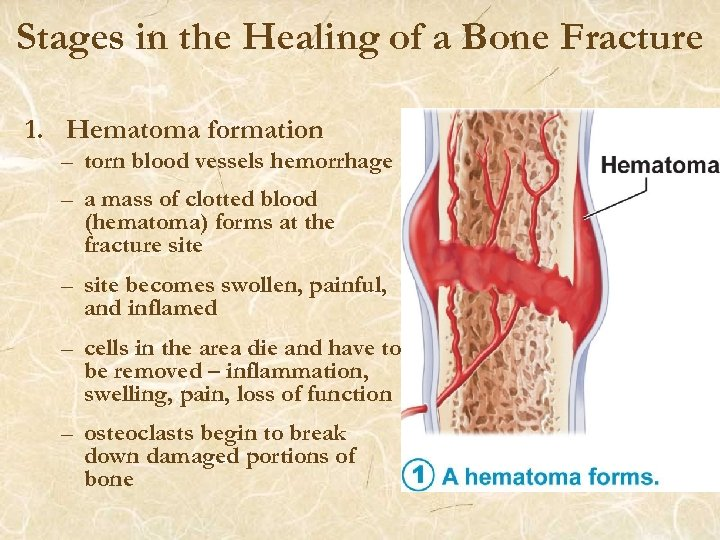 Stages in the Healing of a Bone Fracture 1. Hematoma formation – torn blood