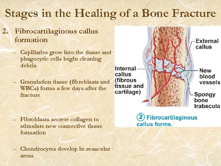 Stages in the Healing of a Bone Fracture 2. Fibrocartilaginous callus formation – Capillaries