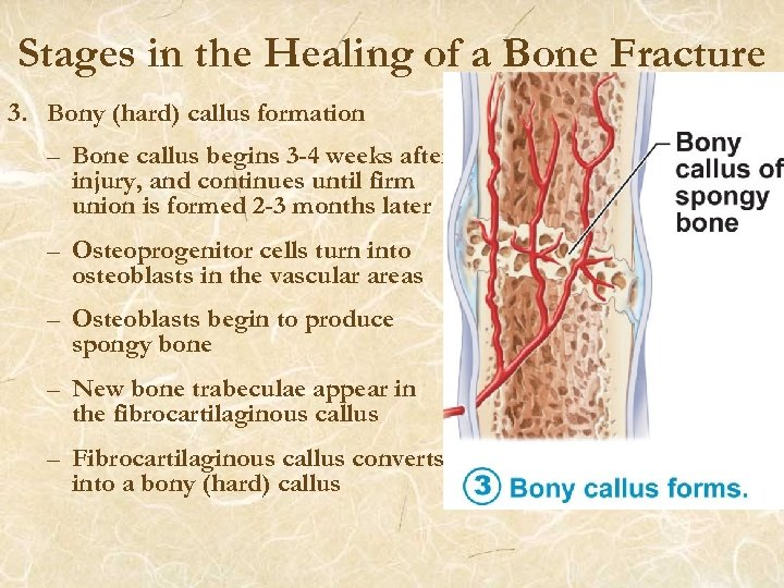 Stages in the Healing of a Bone Fracture 3. Bony (hard) callus formation –