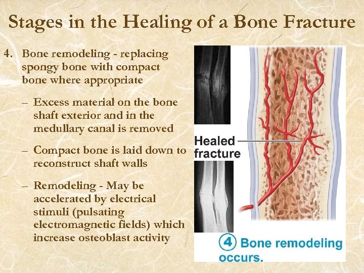 Stages in the Healing of a Bone Fracture 4. Bone remodeling - replacing spongy